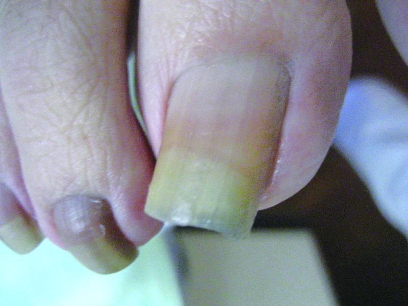 巻き爪 21