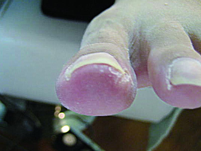 巻き爪 6-1
