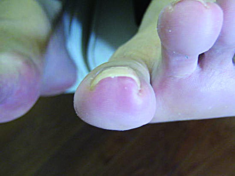 巻き爪 6